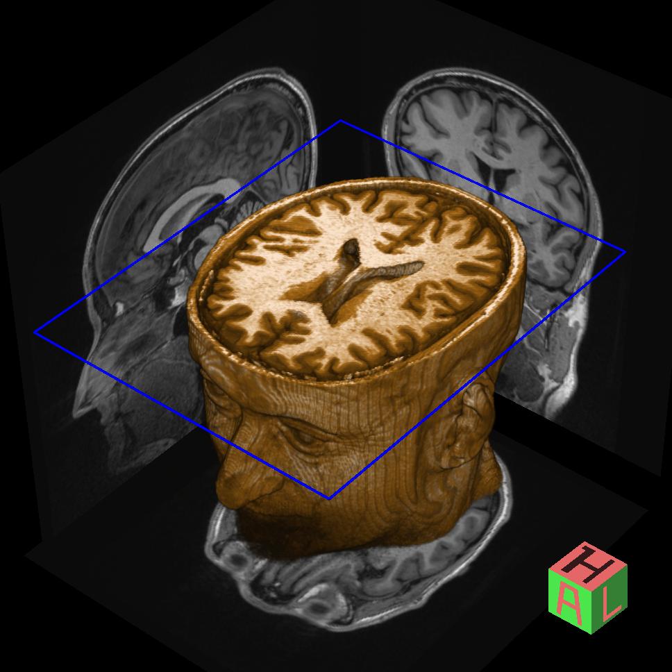 Onein400 brain